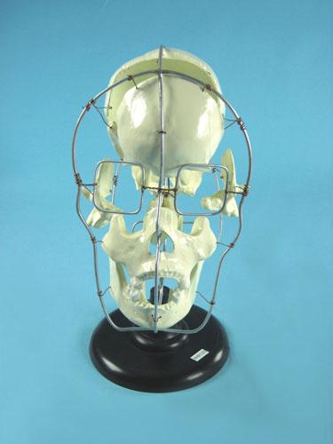 Partial Human Skull Model