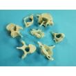 Vertebrae Bone Model Set