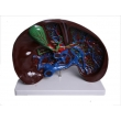 Liver Dissection Model